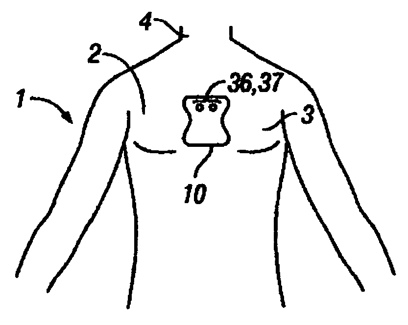 Patent US20060224072 - Disposable extended wear heart monitor ...
